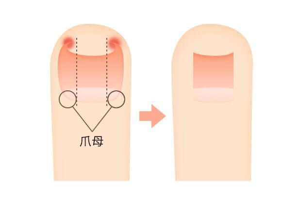 巻き爪・陥入爪の治療